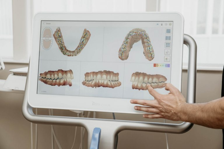 a 3-d model of teeth on the screen of an intraoral scanner